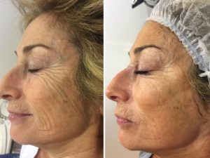 A-Lift Non-Surgical Face Lifting Facial